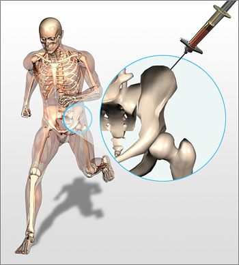 Regenexx harvests stem cells from your hip and injects them into your joints. [The Future of Medicine: http://futuristicnews.com/tag/future-medicine/]
