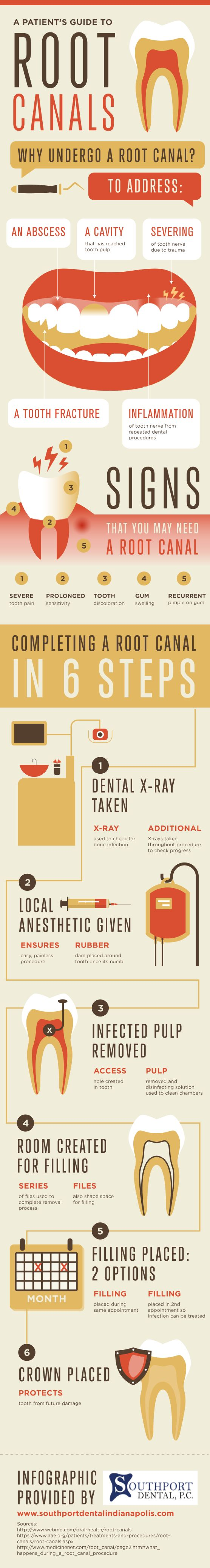 If a tooth's nerve is inflamed after repeated dental procedures, root canal treatment may be necessary to provide relief. Get more details about root canal treatment by clicking over to this infographic from a dentist in Indianapolis.
