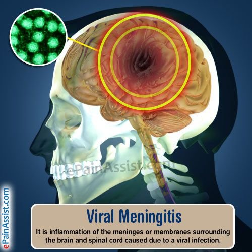 Viral Meningitis Read: http://www.epainassist.com/brain/viral-meningitis