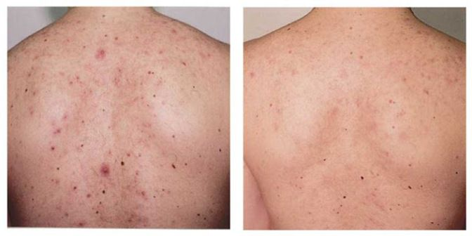 Back Acne Treatment - Methods of Getting Rid of Blackheads Fast -- Learn more by visiting the image link. #melanin