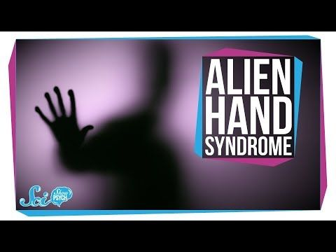 Alien Hand Syndrome: When a Limb Goes Rogue - YouTube