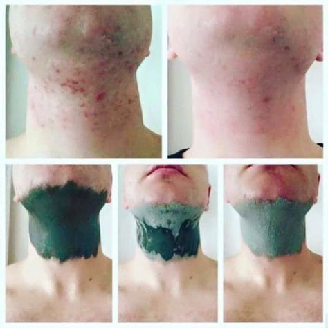 Glacial Marine Mud Mask *Great for blackheads and pores * Helps clear acne and spots *For both men and women  Leaving skin, Smooth. Cleansed and Toned! Inbox for more info!  #glacial marine mud mask