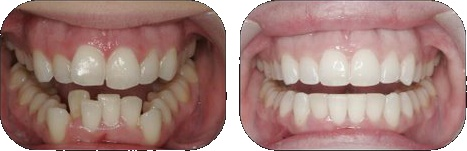 Invisalign® Before and After, 21st Century Dental