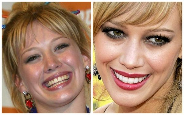 Celebrity Teeth Before And After Teeth Matter