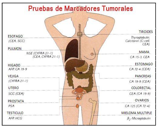 ¿QUÉ SON LOS MARCADORES TUMORALES ? ¿CUANTOS TIPOS HAY? - Medicina mnemotecnias