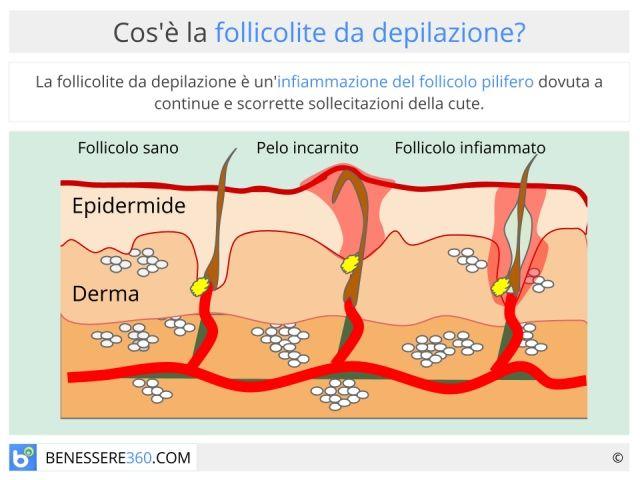 Follicolite da depilazione: inguinale ed alle gambe. Cause e rimedi naturali