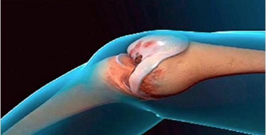 O gengibre normalmente é utilizado para tratar náuseas, gripe, dor de cabeça e vômito.No entanto, essa raiz tem muitas outras utilidades.Nosso Cura pela Natureza já publicou várias receitas com o gengibre.