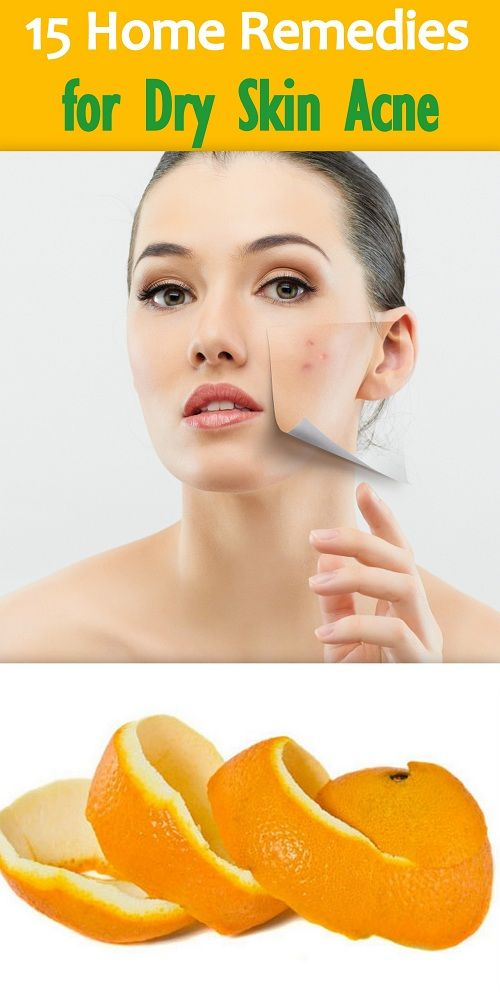 Pimple Face Treatment At Home Doctor Heck