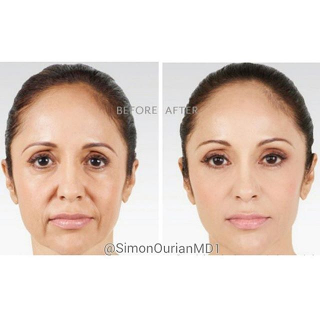 😷 Treatment: Non-Surgical Facelift 🎯 Purpose: Reverse aging signs 👓 How it works: Using long-lasting dermal filler injections 🎉 Results: Immediate to 2 weeks ✏ Note: Individual results may vary 📞 Phone: 310-746-5233 📬 Email: info@epione.com 🌍 Website: www.epionebh.com 📍 Location: Epione Beverly Hills 👏 Technique: Micro-droplet injection 😴 Anesthesia: topical numbing cream ⏰Time it takes: about an hour 📆Recovery: none 👍Lasts: months to years depending on product used 💣Caution…