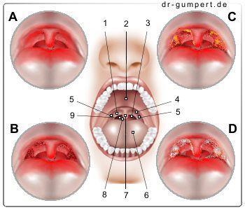 Abbildung Mandelentzündung