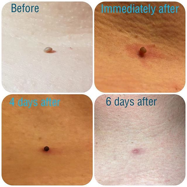 Skin Tag Removal With Cryotherapy Prices Start From 30 Contact The Salon To Book Your Free Consultation Thesalon Guin Skin Tag Removal Cryotherapy Skin Tag
