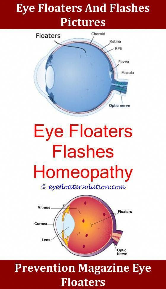 Eye Exercises To Remove Floaters,vitamin c and eye floaters