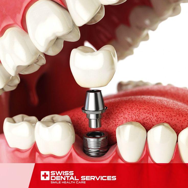 Les implants dentaires contribuent au maintien des dents voisines. www.swissdentalservices.com/fr