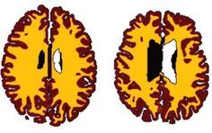 From middle-age, the brains of obese individuals display differences in white matter similar to those in lean individuals ten years their senior, according to new research.