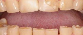 Salute Dei Denti, 5 Alimenti Che La Distruggono