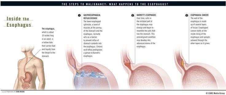 esophageal canc...