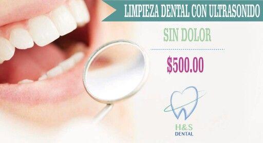 Limpieza dental sin dolor con ultrasonido.