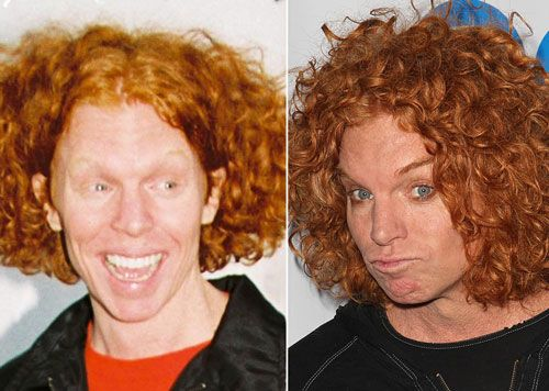 The Worst Plastic Surgery, See The Carrot Top Plastic Surgery