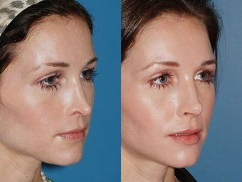 nose job with injection - Best Rhinoplasty