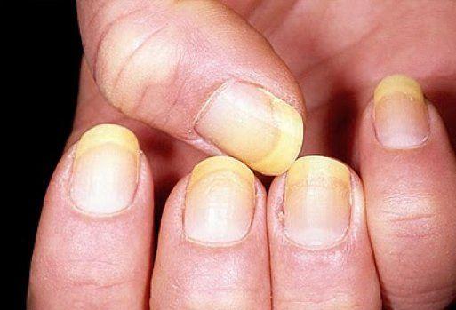 Excelente método para deshacernos de las uñas manchadas o amarillas por el esmalte