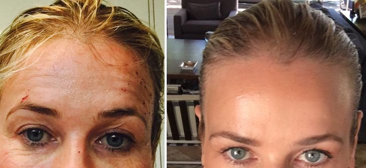 Whoa: This Laser Treatment Has Crazy Results, as Proven by ChelseaHandler | StyleCaster
