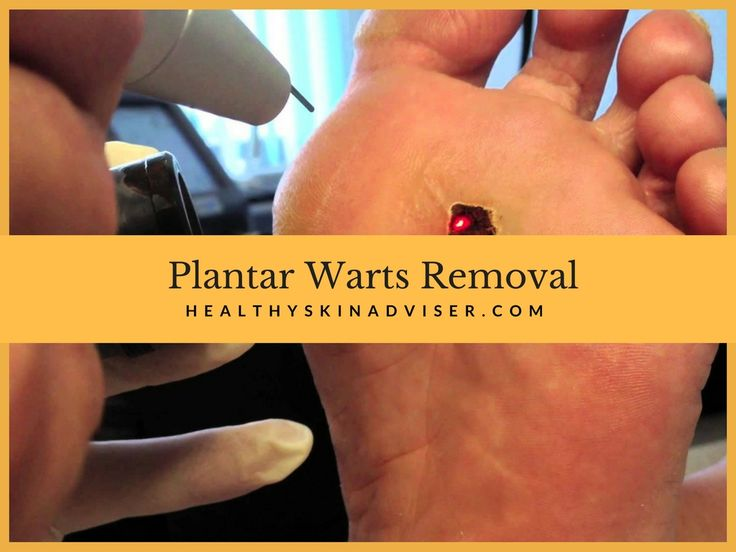 Plantar Wart Removal: How to Get Rid of Warts With Surgery and Home Treatments - https://healthyskinadviser.com/plantar-warts-removal/