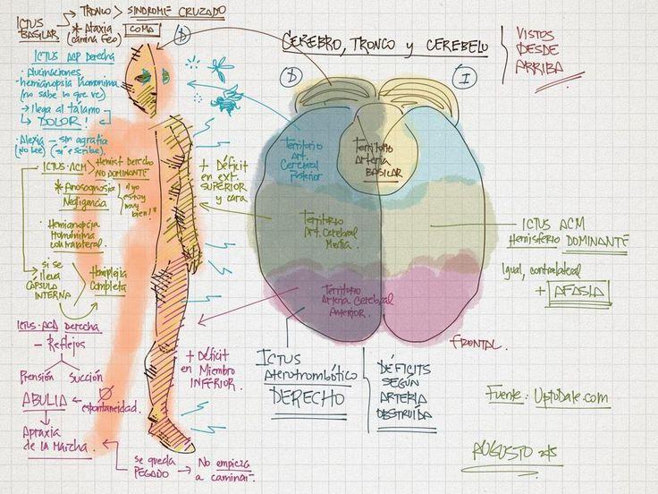 deficit neurologico tras ICTUS segun arteria obstruida