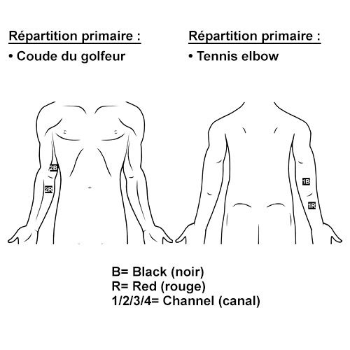 TENS en cas de tennis elbow, du coude du golfeur ou d'épicondylite