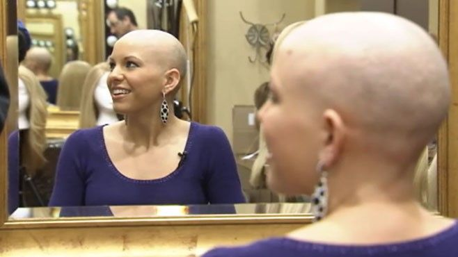 bald beautiful women   VIDEO: Suffering from a rare condition, Kayla Martell…