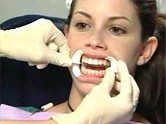 Laser Tooth Whitening Procedure #all #dental #insurance #plans #teeth whitening procedure # Laser Tooth Whitening Procedure Here is how this laser tooth whitening techn http://reviewscircle.com/health-fitness/dental-health/natural-teeth-whitening/