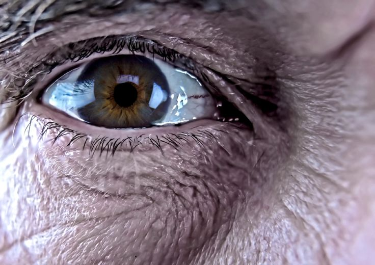DMRI causa perda progressiva da visão - Vivo Mais Saudável