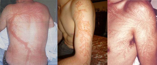Lichtenberg fractal scars after lightning strikes