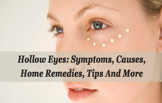 Hollow Eyes: Symptoms, Causes, Home Remedies, Tips And More  If you ever find that you have hollow eyes, also known as sunken eyes, then just try the remedies mentioned in this blog and fix hollow eyes forever. Know more at: http://www.eyelidslift.com/blog/get-rid-of-hollow-eyes