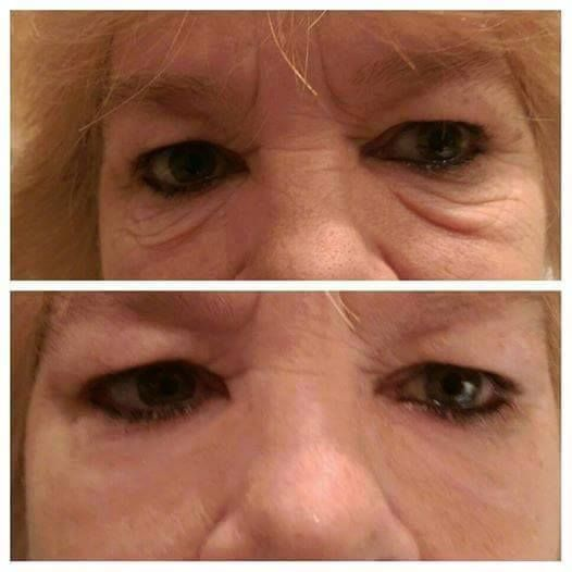 Amazing!    $64.95 Retail  (25 vials- each good for 3-5 applications on both eyes)  Contact me at agelessgrace2@gmail.com