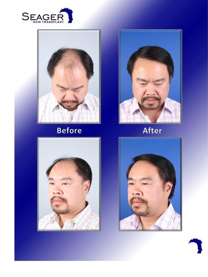 64 Best Hair Transplants For Men Images On Pinterest Black Black