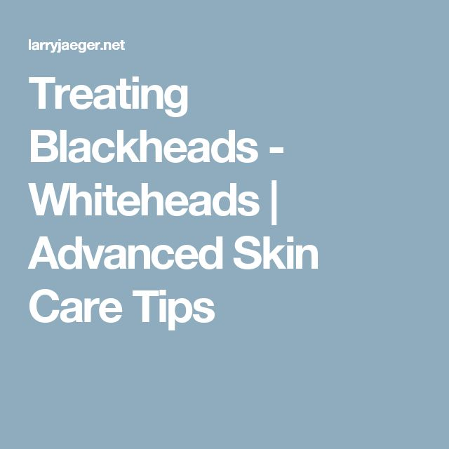 Treating Blackheads - Whiteheads | Advanced Skin Care Tips