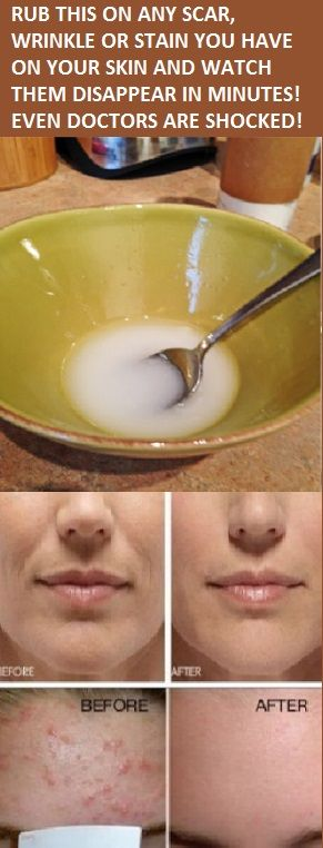 RUB THIS ON ANY SCAR, WRINKLE OR STAIN YOU HAVE ON YOUR SKIN AND WATCH THEM DISAPPEAR IN MINUTES! EVEN DOCTORS ARE SHOCKED!