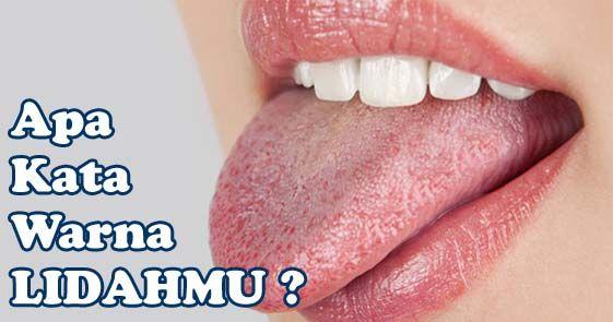 Ada baiknya bagi anda untuk mengetahui jenis warna lidah yang dapat membantu mendeteksi penyakit yang bisa saja saat ini anda derita tanpa sepengetahuan.