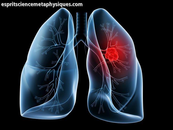 Lésions pulmonaires : On a découvert qu'un composé végétal commun répare les lésions pulmonaires liées à la MPOC (maladie pulmonaire obstructive chronique)