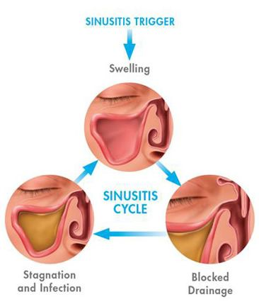 The 25 Best Ideas About Sinusitis Treatment On Pinterest