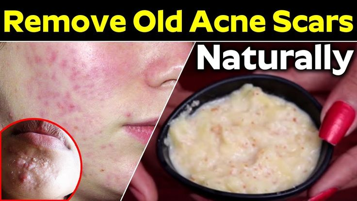 Get Rid of Acne Scars, Dark Spots and Hyperpigmentation | Beauty Tips
