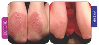 Get best treatment for psoriasis in india