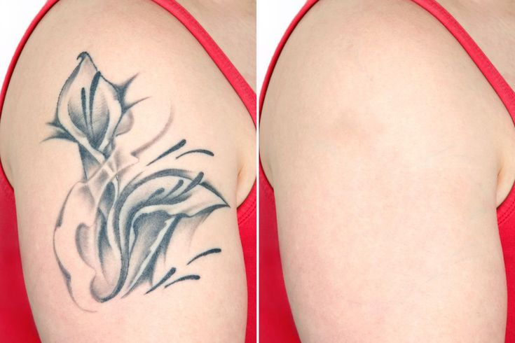 Simple Tattoos Removal tattoos removal Tattoo is an art that is painted on body parts, it is an option to express themselves. Paintings made on a tattoo will usually describe a person's personality. However, you should really think this through carefully before you decide to do a tattoo on your body parts. Because the tattoo …