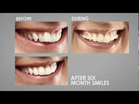 Six Month Smiles in One Minute. courtesy O'Fallon MO Dentist, www.monticellodental.com/gallery.html