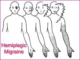 hemiplegic-migraine
