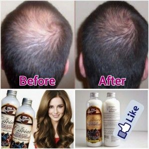 SyaShop , apakah ada shampoo pemanjang rambut aman halal berbpom? Apakah ada penghilang ketombe rambut tanpa efek samping? Apakah ada produk perawatan rambut yang terbukti hasilnya? Apakah shampoo kuda halal aman bpom ?  -–>ada namanya The Caviar Shampoo KUDA