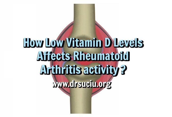 Picture drsuciu Vitamin D Levels and Rheumatoid Arthritis Activity                                                                                                                                                                                 More