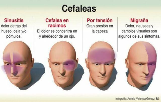 TU SALUD Y BIENESTAR : ¿Conoces las diferencias entre Cefalea Tensional y...