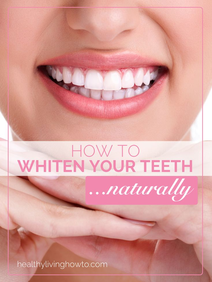 How To Whiten Your Teeth Naturally | healthylivinghowto.com