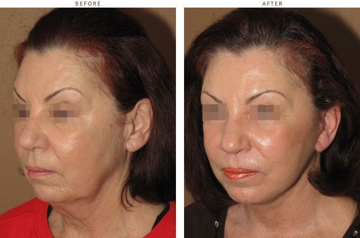 Mini Face Lift Before And After Pictures Dr Turowski Plastic Weekend Facelift Be…
